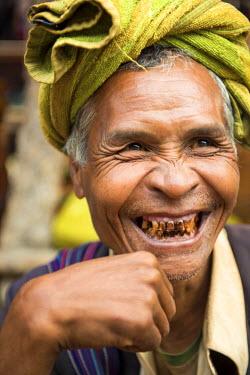 MYA1996AW Samka, Shan State, Myanmar. Typical Pa-o man smiling showing his rotting teeth.